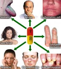 Tetracycline side effects