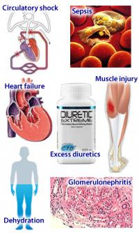 Acute renal failure causes