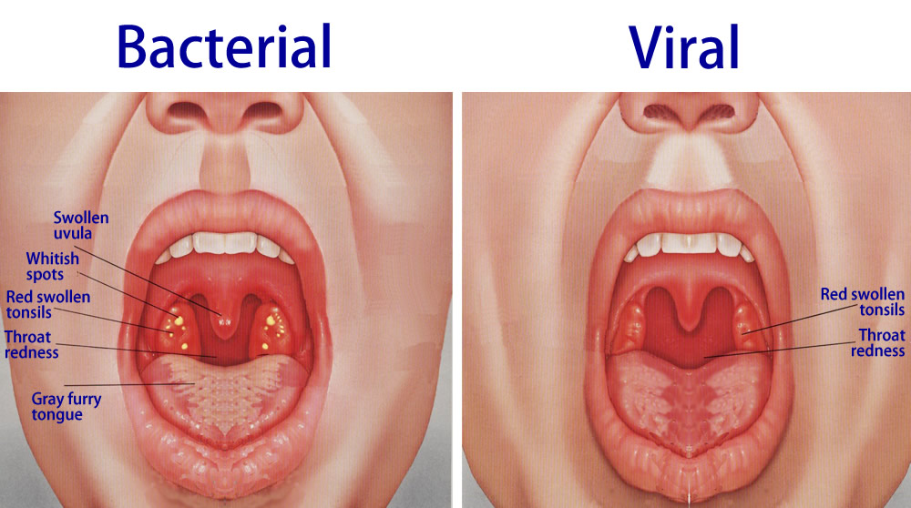 angina pharyngitis and tonsillitis : strep throat diagram - findchart.co