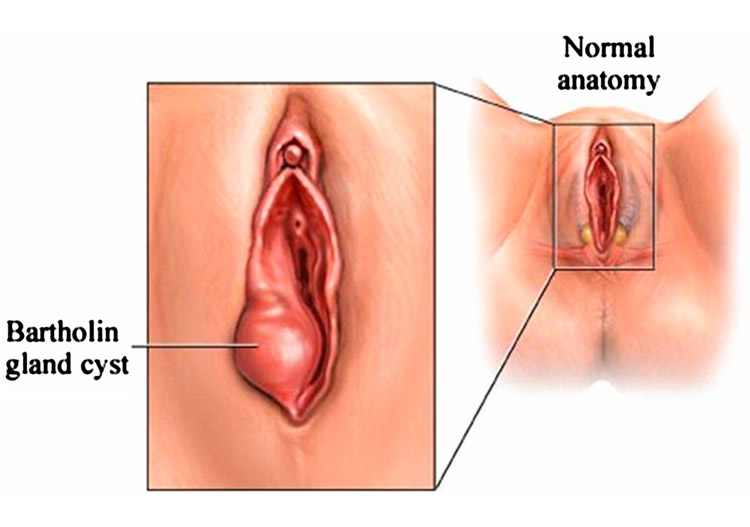 Most Common Vaginal Conditions You Need To Know About