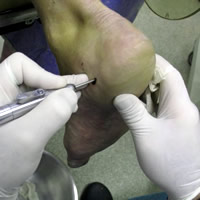 Calcaneal spur treatment
