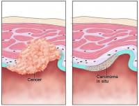 Cancer and carcinoma