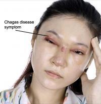 Chagas disease symptom