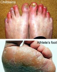 Chilblains and Athlete`s foot