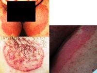 Dermatophytosis (ringworm)