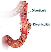 Diverticulitis in large intestine