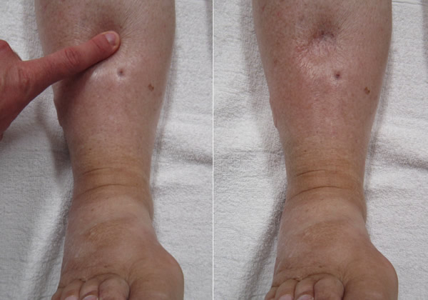 can varicose veins cause swelling