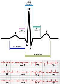 Elements of ECG