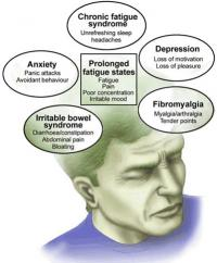Fatigue syndrome