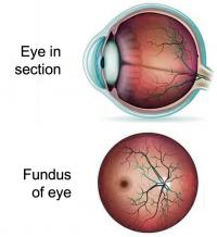 Fundus of eye