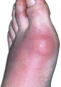 sudden ankle pain gout high uric acid causes gout does lime juice reduce uric acid
