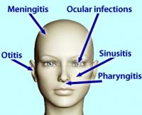 Head infections