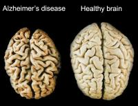 Healthy and affected brain