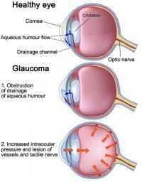 Healthy eye and glaucoma