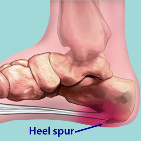 How To Reduce Heel Pain Shoes