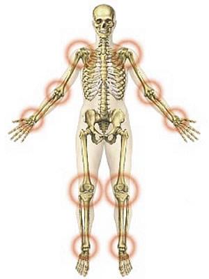 Rheumatoid Arthritis - Symptoms and Treatment