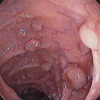 Intestinal polyps