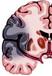 Ishemic stroke
