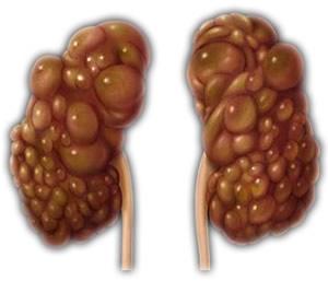 holistic treatment of gallstones