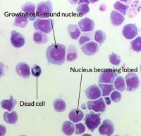 Leukemic cells under microscope