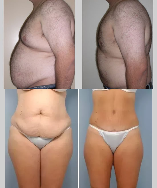 Liposuction Surgery - Indications and Risks