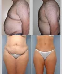 Liposuction results