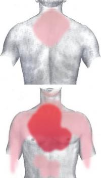 Locations of infarction pain