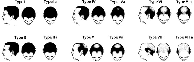 Male patterns of hair loss