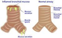 Mucosal edema