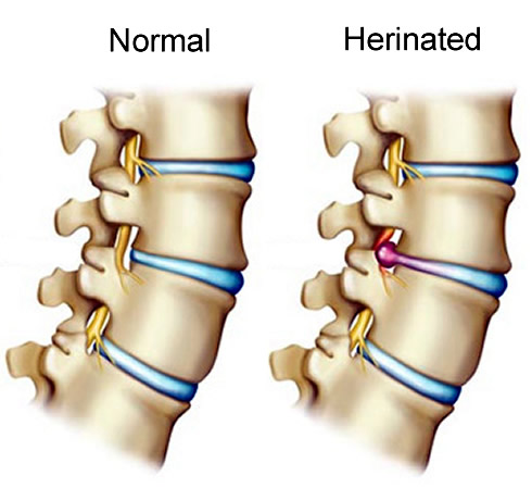 Not all people who suffer from spinal pain are candidates for percutaneous discectomy