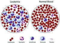 Normal blood and leukemia