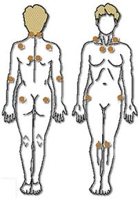 Pain points of fibromyalgia