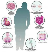 Parkinson`s disease symptoms