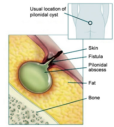Pilonidal Cyst - Causes, Symptoms and Surgery