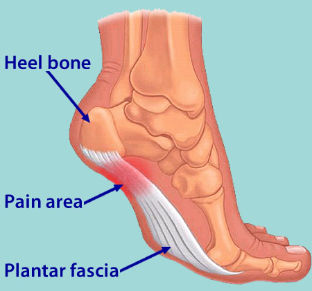 support for plantar fasciitis