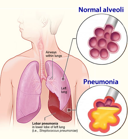 aspiration pneumonia Aspiration pneumonia is a cyclical beast when elders get aspiration pneumonia it weakens their whole body, impacts their general medical status, and ultimately increases their risk for additional aspiration and aspiration pneumonia.