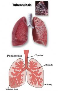 Pneumonia and tuberculosis lungs