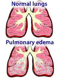 Image result for pulmonary edema