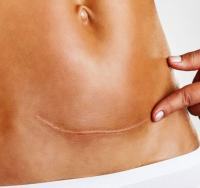 Scar after cesarean section