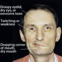Signs of facial paralysis