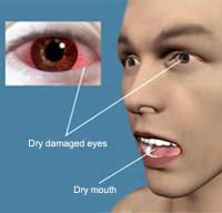 Sjogren syndrome symptoms