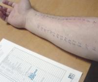 Skin test reaction