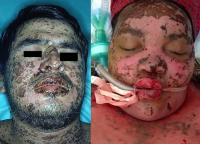 Stevens-Johnson syndrome and toxic epidermal necrolysis