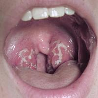 Streptococcus pharyngitis