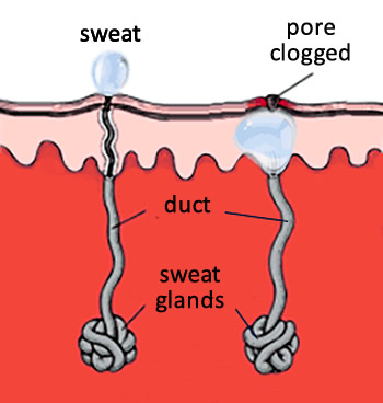 problem and gland breasts sweat
