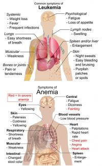 Symptoms of anemia and leukemia