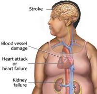 Symptoms of hypertension
