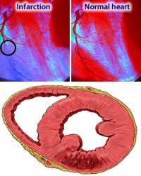 Symptoms of infarction