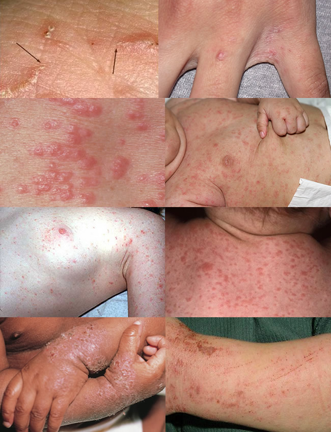 scabies in human - transmission, symptoms and treatment, Cephalic Vein