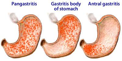symptoms of drug induced liver disease